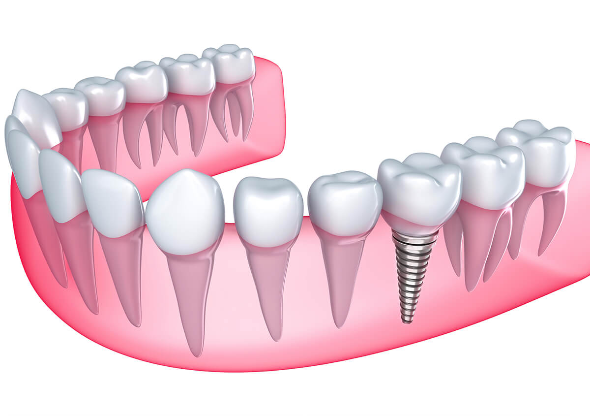 Implant Dentist at Downtown Dental Services located in Cleveland, OH Area