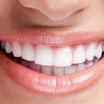Teeth Whitening Dentist in Cleveland OH Area